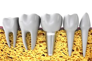 Dental Implant Side View
