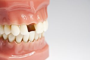 Artificial Jaw Missing a Tooth