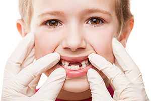 Children's Periodontal Health